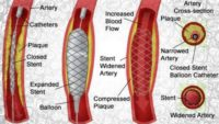Angioplasty causes and Treatments