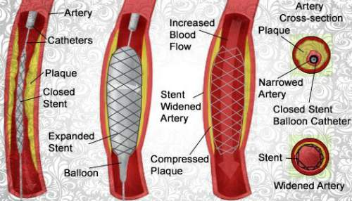 Angioplasty - Angioplasty causes and Treatments