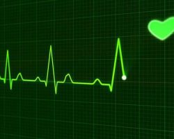 cardiac-monitoring