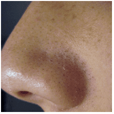 Blackheads on Nose - How to Get Rid of Blackheads on the Nose