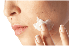 prevent blackheads