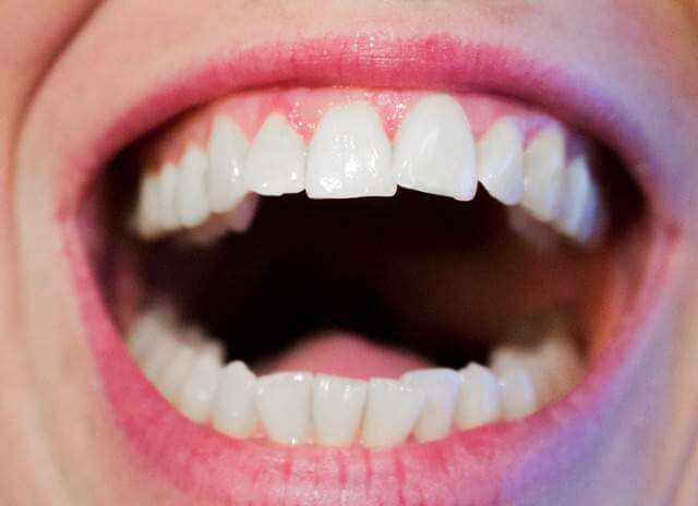 Healthy Mouth - How Healthy Mouths Benefit Your Body