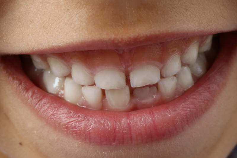 teeth child smile - Teeth Grinding in Children: Causes and Treatments