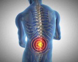 Back-bone-Pain-st