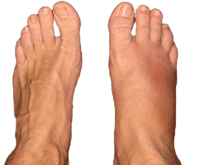 How to Treat a Stress Fracture