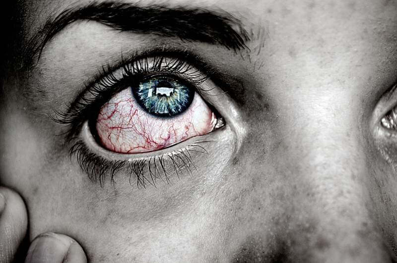 eye-sick-blue-red-pain