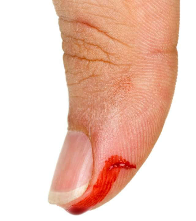 Bleeding thumb finger