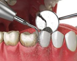 professional-teeth-cleaning-ultrasonic-teeth