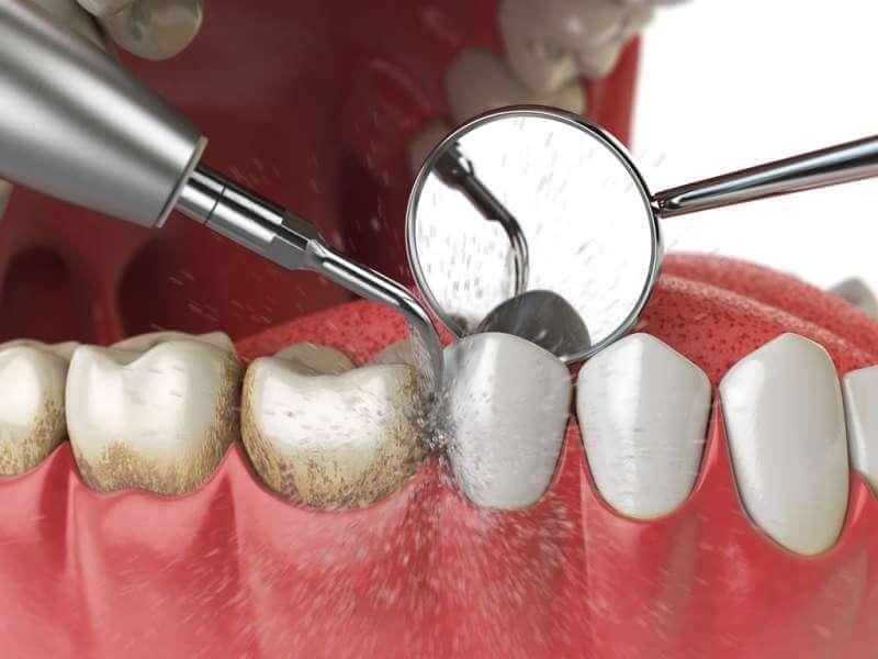 professional-teeth-cleaning-ultrasonic-teeth