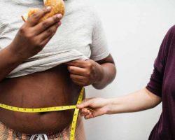 obesity tape measurement