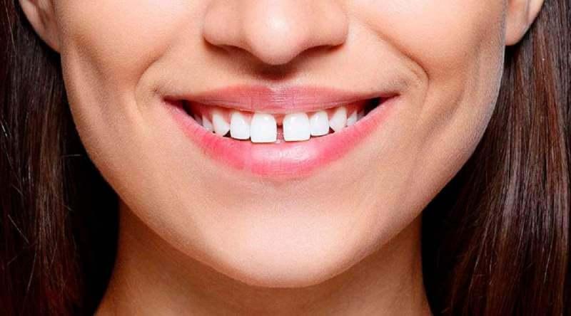 Gapped-Teeth