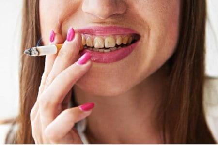 smoking-women-teeth