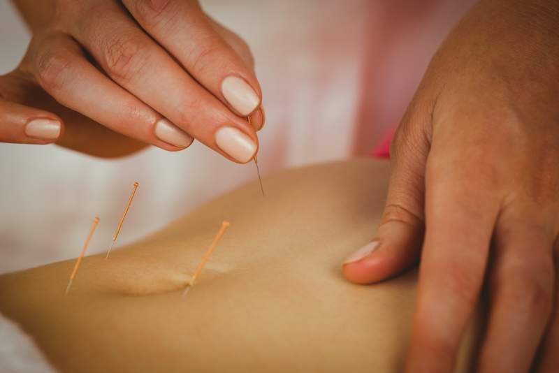 young-woman-getting-acupuncture-treatment