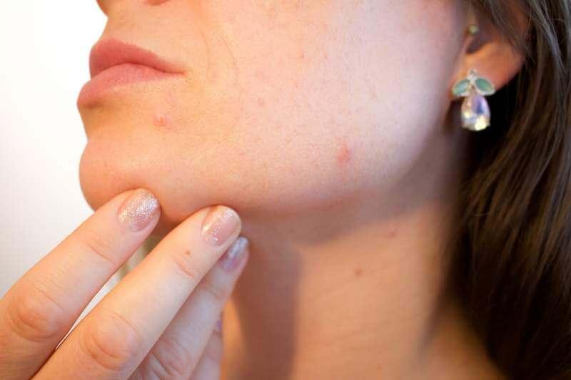 acne-pores-skin-pimple-female