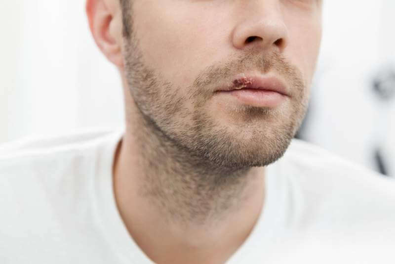 young-man-suffering-from-herpes-on-his-mouth