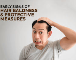 Early Signs Of Hair Baldness