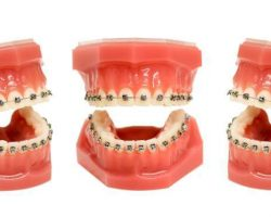 teeth-model-with-wired-dental-braces