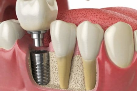 anatomy-of-healthy-teeth-and-tooth-dental-implant
